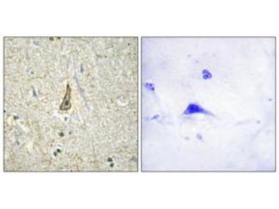 Rabbit polyclonal Cytochrome P450 26C1 antibody