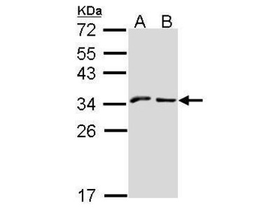 Rabbit Polyclonal antibody to KLRC1 (killer cell lectin-like receptor subfamily C, member 1)