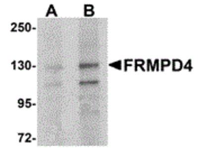 Rabbit Polyclonal FRMPD4 Antibody