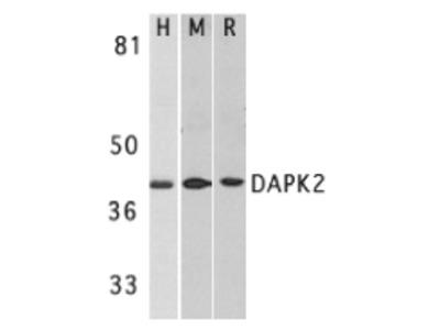 Rabbit Polyclonal DAPK2 Antibody