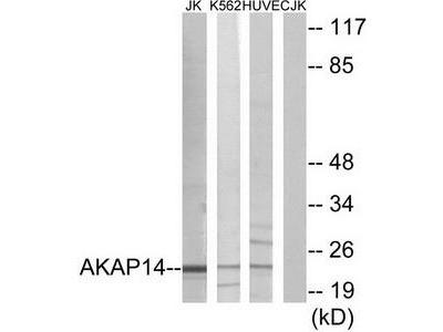 Rabbit polyclonal anti-AKAP14 antibody