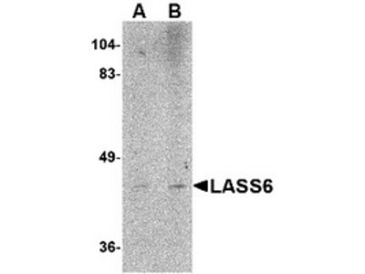 Rabbit Polyclonal LASS6 Antibody