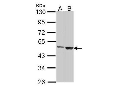 Rabbit polyclonal antibody to GAL3ST1 (galactose-3-O-sulfotransferase 1)