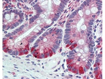 ESYT1 Rabbit Polyclonal (Internal) Antibody