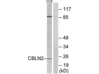 Rabbit polyclonal anti-CBLN2 antibody
