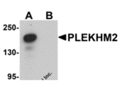 Rabbit Polyclonal PLEKHM2 Antibody