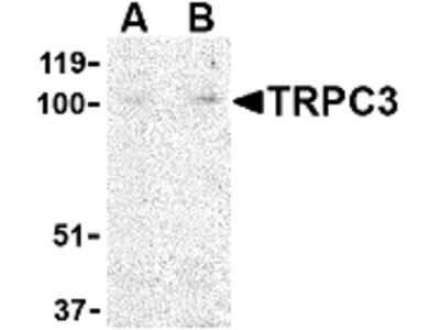 Rabbit Polyclonal TRPC3 Antibody
