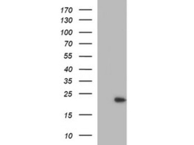 LZIC mouse monoclonal antibody, clone OTI2D3 (formerly 2D3)