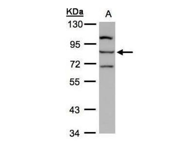 Rabbit Polyclonal antibody to ALOXE3 (arachidonate lipoxygenase 3)