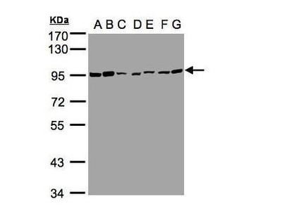 Rabbit polyclonal antibody to CD66e (carcinoembryonic antigen-related cell adhesion molecule 5)