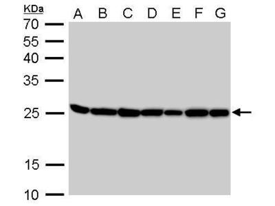 Rabbit Polyclonal antibody to Triosephosphate isomerase (triosephosphate isomerase 1)