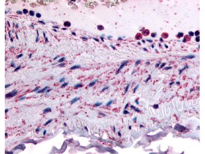 PLIP / PTPMT1 Rabbit Polyclonal (N-Terminus) Antibody