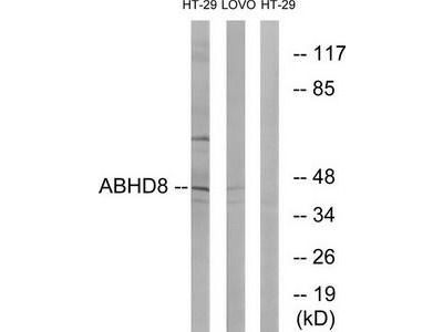 Rabbit polyclonal anti-ABHD8 antibody
