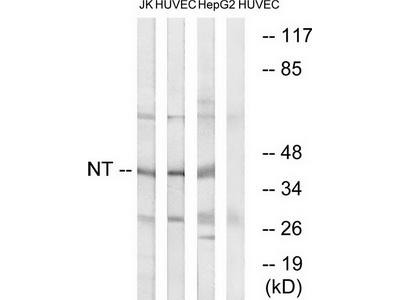 Rabbit polyclonal anti-NTM (neurotrimin) antibody