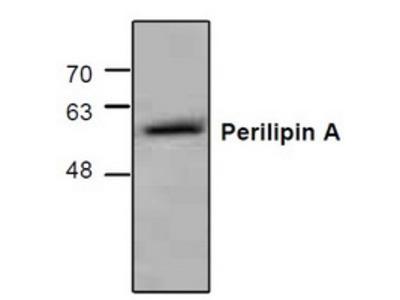 Rabbit polyclonal anti-Perilipin A antibody