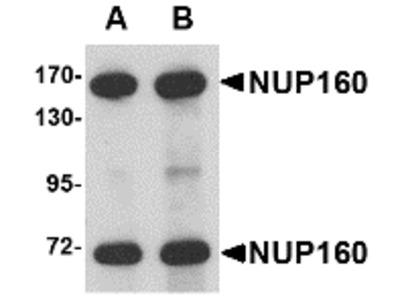 Rabbit Polyclonal NUP160 Antibody