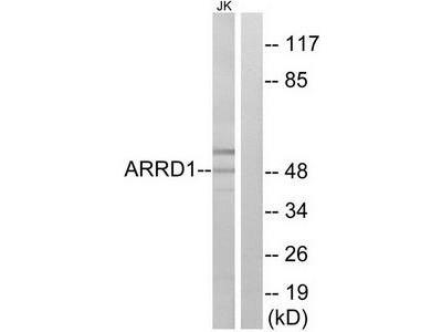 Rabbit polyclonal anti-ARRD1 antibody