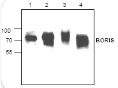 Rabbit polyclonal anti-CTCF (Boris) antibody