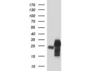 POMC mouse monoclonal antibody, clone OTI2B2 (formerly 2B2)