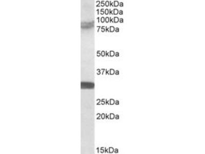 Goat Anti-TRIM2 Antibody