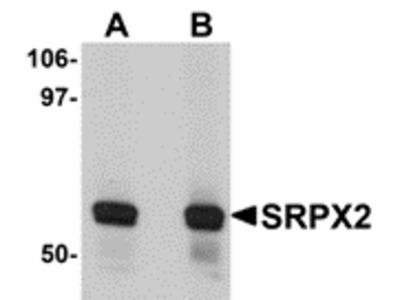 Rabbit Polyclonal SRPX2 Antibody