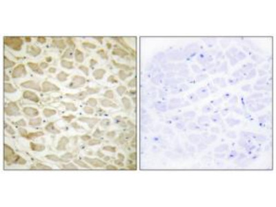 Rabbit polyclonal Collagen XIV a1 antibody