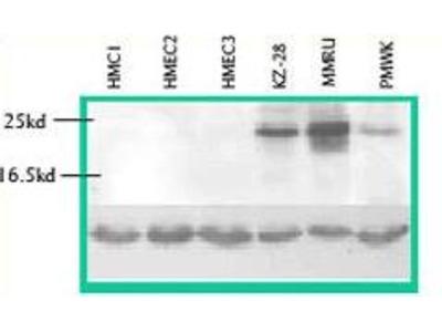 Rabbit anti-CTHRC1 polyclonal antibody