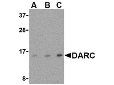 Rabbit Polyclonal DARC Antibody