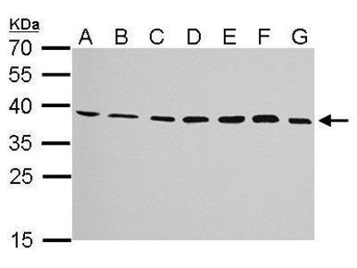 Rabbit Polyclonal antibody to JAM-B (junctional adhesion molecule 2)