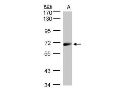 Rabbit polyclonal antibody to IL-12R beta1(CD212) (interleukin 12 receptor, beta 1)