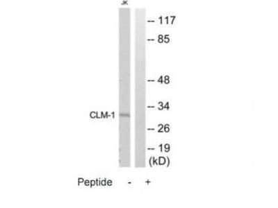 Rabbit polyclonal anti-CD300LF (CLM-1) antibody