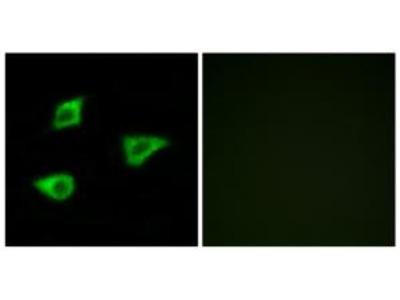Rabbit polyclonal anti-CHRM4 antibody