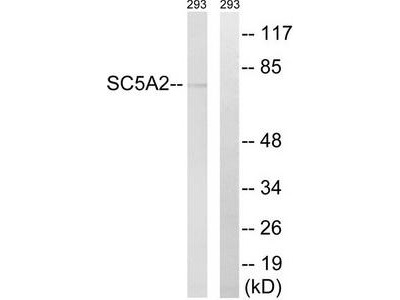 Rabbit polyclonal anti-SLC5A2 antibody