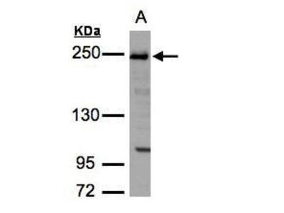 Rabbit polyclonal antibody to ZO-1 (tight junction protein 1 (zona occludens 1))