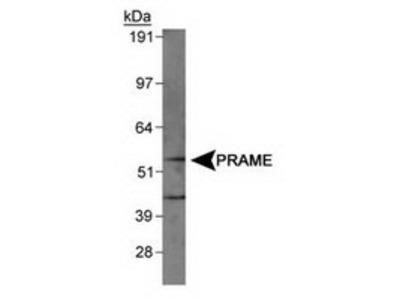 Rabbit Polyclonal PRAME Antibody