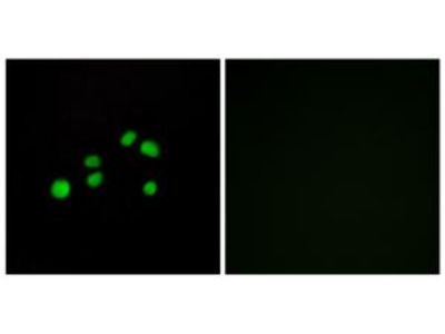 Rabbit polyclonal Collagen XXIII a1 antibody