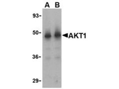 Rabbit Polyclonal Akt1 Antibody