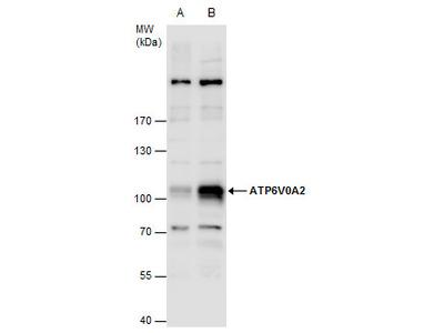Rabbit Polyclonal antibody to ATP6V0A2 (ATPase, H+ transporting, lysosomal V0 subunit a2)