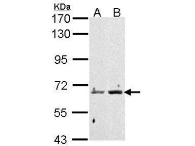 Rabbit Polyclonal antibody to PAD4 (peptidyl arginine deiminase, type IV)