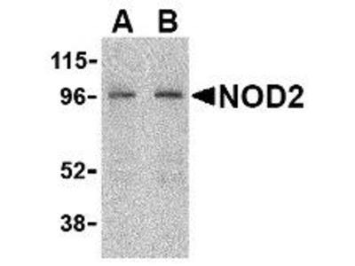 Rabbit Polyclonal NOD2 Antibody