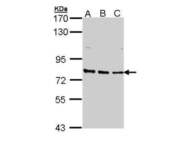 Rabbit polyclonal antibody to XPB (excision repair cross-complementing rodent repair deficiency, complementation group 3 (xeroderma pigmentosum group B complementing))