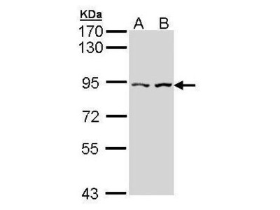 Rabbit polyclonal antibody to Alpha-catulin (catenin (cadherin-associated protein), alpha-like 1)