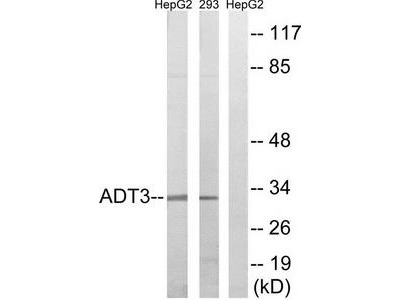 Rabbit polyclonal anti-SLC25A6 antibody