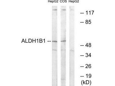 Rabbit polyclonal anti-ALDH1B1 antibody