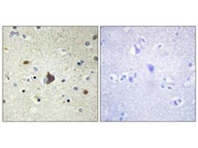 Rabbit polyclonal Collagen IV a3 antibody
