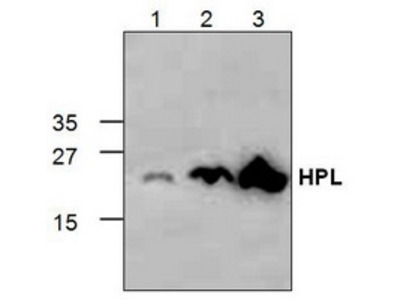 Rabbit polyclonal anti-Placental Lactogen antibody