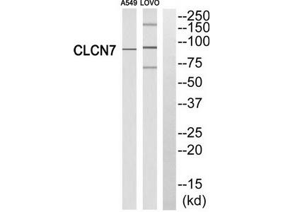 Rabbit polyclonal anti-CLCN7 antibody