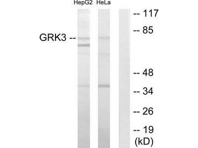 Rabbit polyclonal anti-GRK3 antibody