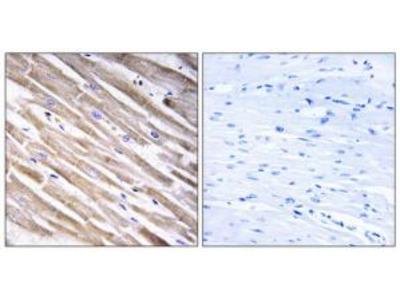 Rabbit polyclonal anti-RPL3L antibody