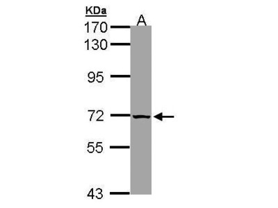 Rabbit Polyclonal antibody to SLC25A13 (solute carrier family 25, member 13 (citrin))